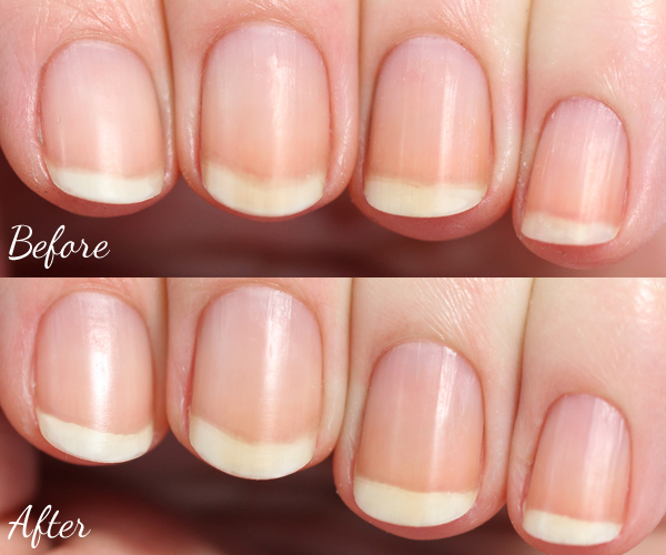 Naked Nails - Before & After via @alllacqueredup