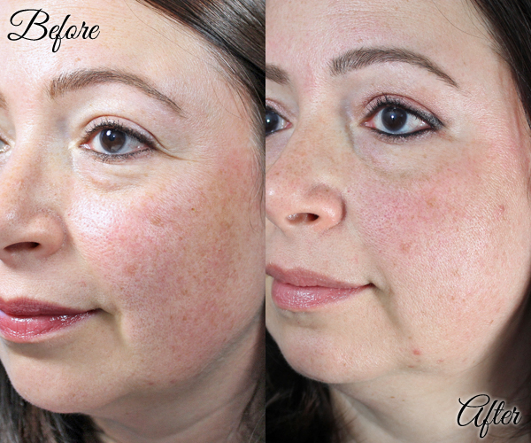 PIcoWay Laser and SkinMedica Vitalize Peel - Before & After
