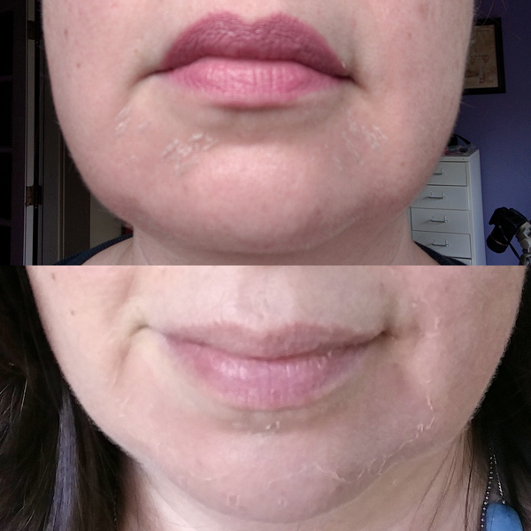 SkinMedica Vitalize Peel - Peeling