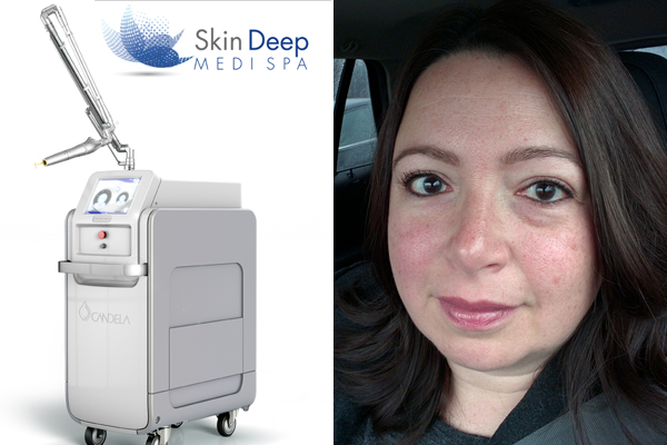 SkinDeep Medi Spa PicoWay Laser Treatment